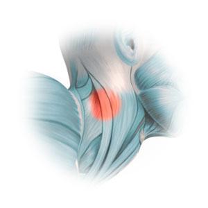 Halswirbelsäulebeschwerden behandeln in Basel
